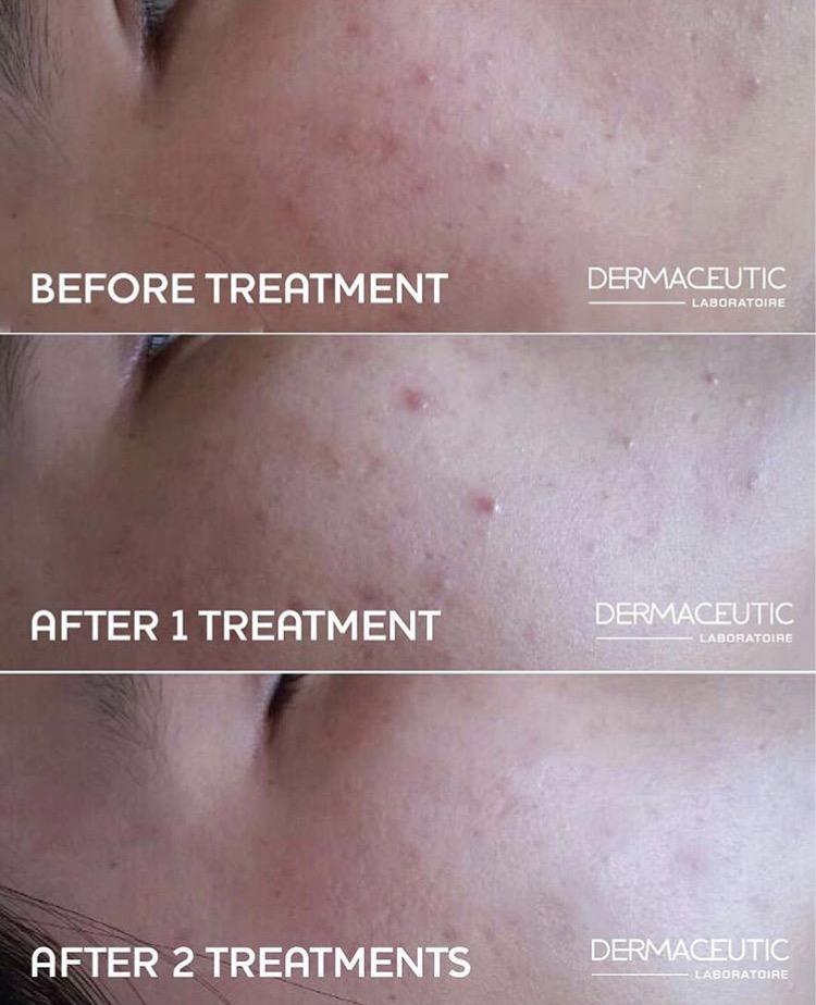 Dermaceutic Skin Peel