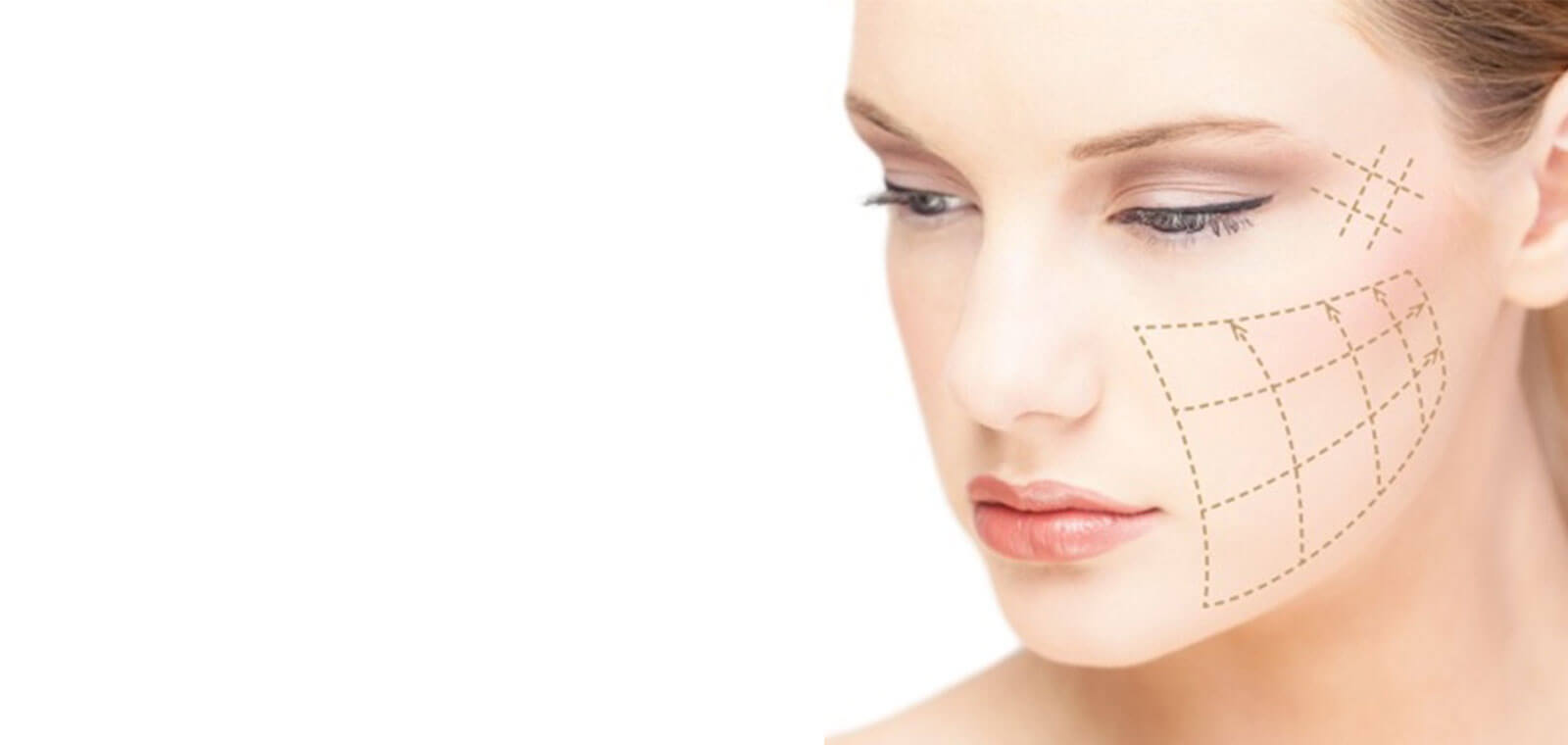Thread Lift Essex | Non-Surgical Facelift Southend | Snap Beauty