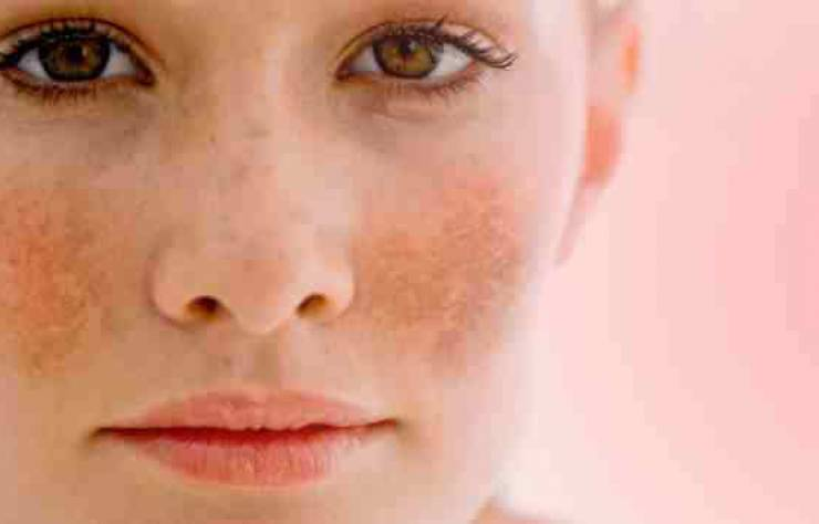 Pigmentation – all you need to know!